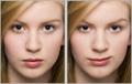 Gesichtsbearbeitung: Facelifting ohne Schmerzen