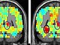 Wie speichert das Gehirn Begriffe?