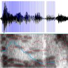 Audiofilter: Der Klang der Liebe