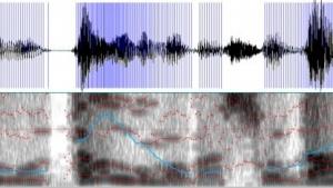 Spektrogramm einer Frauenstimme