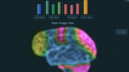 Hirnstromaktivität: Schalten mit der Kraft der Gedanken