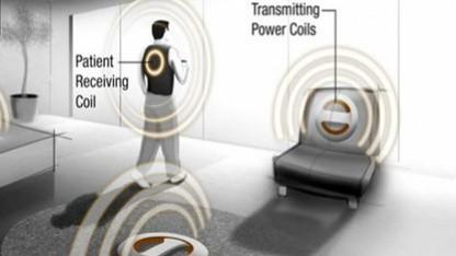 Strom aus der Umgebung für das Implantat