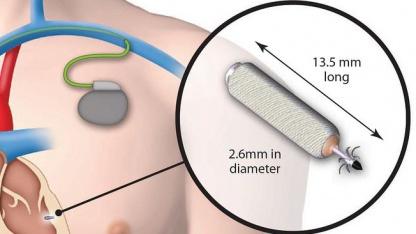 WiCS: Ultraschallsignale in elektrische Impulse gewandelt