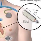 WiCS: Erster drahtloser Herzschrittmacher vorgestellt