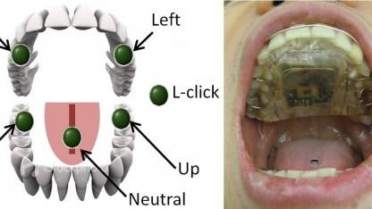 Tongue Drive System: Sensoren können nicht mehr verrutschen.