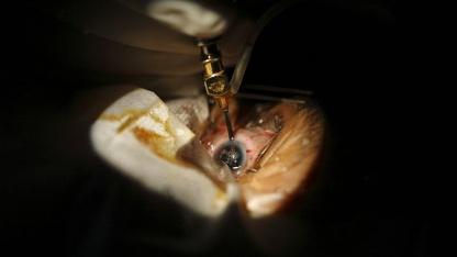 Augenoperation (Symbolbild): Implantat ohne Induktionsspulen und Kabel