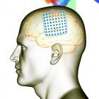 BCI: Elektrode auf dem Gehirn entschlüsselt Bewegung