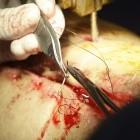 Sensor: Schlaue Fäden erkennen Entzündung