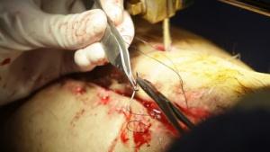 Nähen einer Operationswunde (Symbolbild): Fäden wärmen und erkennen eine Infektion.