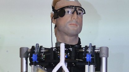 Rex, The Bionic Man: 1 Million US-Dollar teures Ersatzteillager