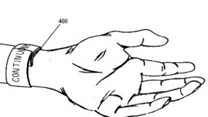 Apples smartes Armband