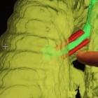 Atmung: Implantat aus 3D-Drucker rettet Säugling das Leben