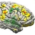 Brain Computer Interface: Datenschutz für Gehirnströme