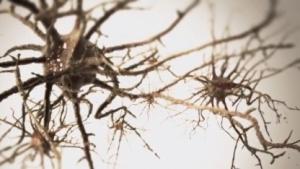 Nervenzelle (Symbolbild): tolerant gegenüber Lücken in den Daten