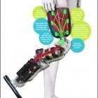 Bionik: Beinprothese wird mit umgelenkten Nerven gesteuert