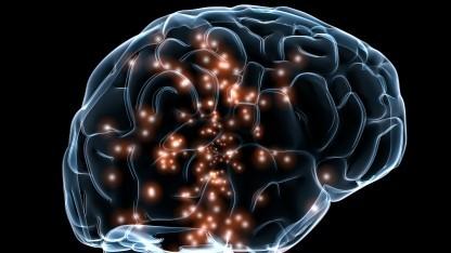 Menschliches Gehirn (Symbolbild): genauer und günstiger als siliziumbasierte Elektroden