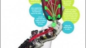 Bionische Prothese: nahtloser Wechsel vom Gehen auf geradem Untergrund zum Treppensteigen