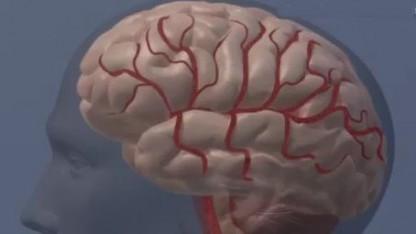 Menschliches Gehirn (Symbolbild): Chip soll bei diversen neurologischen Erkrankungen helfen.