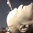 Gedruckter Schädel: 3D-Drucker in der Medizinerausbildung