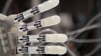 Bionische Handprothese: nach neun Jahren wieder Gegenstände fühlen