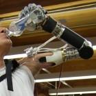 Bionische Prothese: US-Behörde lässt den Deka Arm zu