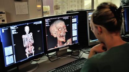 In den USA sind die Daten von Millionen von Krankenhauspatienten gestohlen worden.