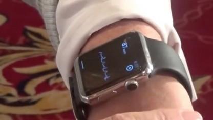 Apple Watch leitet EKG ab.