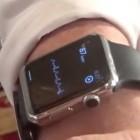 Alivecor: Modifizierte Apple Watch zeichnet EKG auf
