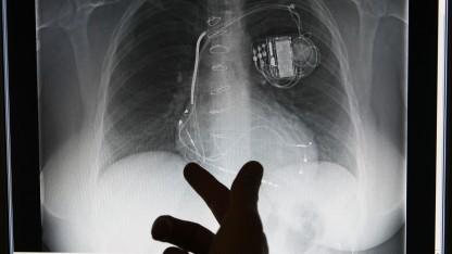 Welche Schnittstellen hat ihr Herzschrittmacher?