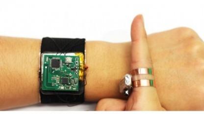 Das Skintrack-System in seinen Einzelteilen: Links das Sensorarmband, rechts der signalgebende Ring
