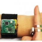 Smartwatch: Skintrack macht den Arm zum Touchpad