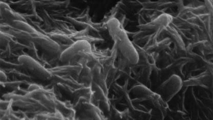Shewanella oneidensis kann auch ohne Sauerstoff mit Strom leben.