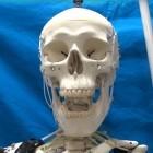 Künstliche Muskeln: Skelettroboter klappert mit den Zähnen