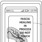 Lenovo: Patent beschreibt selbstheilendes Smartphone-Display