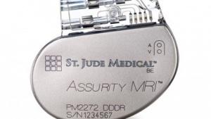 Herzschrittmacher von St. Jude Medical haben erneut Sicherheitsprobleme.