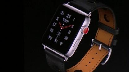 Apple Watch hat einen Fehler.
