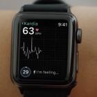 Gesundheit: Apple Watch soll künftig EKG enthalten