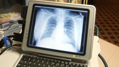 Röntgenbild auf dem Computer