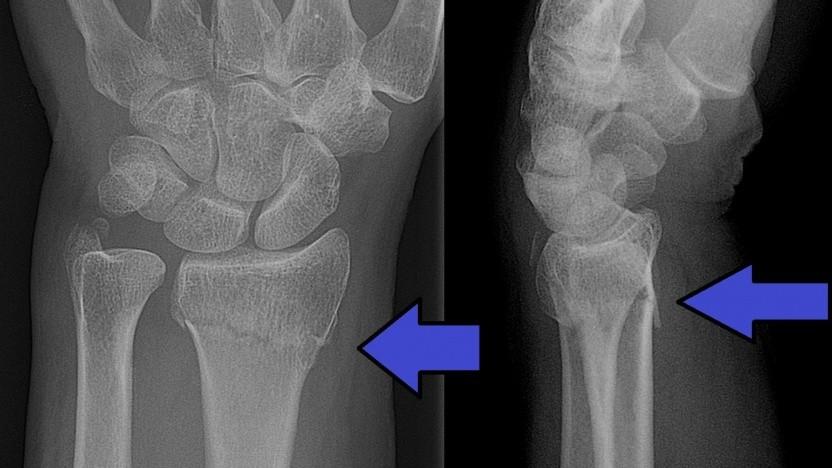 Imagen Tech: KI-System Osteodetect erkennt Knochenbrüche - Golem.de