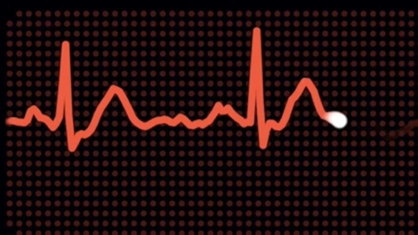 EKG auf der Apple Watch