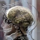 Hirnforschung: KI rekonstruiert Sprache aus Hirnströmen