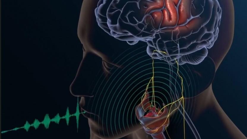 Sprachsynthese: ein erster Schritt zur Nachbildung des natürlichen Sprechens