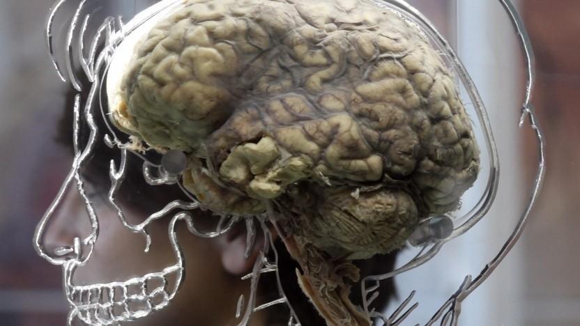 Menschliches Gehirn (Symbolbild): Elektrodenfäden, dünn wie Nervenzellen