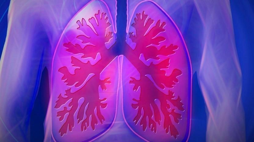 Covid-19 ist eine Lungenkrankheit. Beatmungsgeräte helfen dagegen.