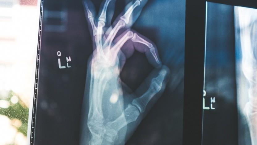 Auch Röntgenbilder waren durch den Ransomware-Befall zwischenzeitlich nicht abrufbar.