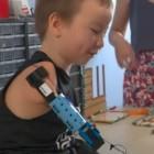 Medizintechnik: Hand Solo baut Prothese aus Lego für achtjährigen Jungen